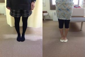 膝関節 骨盤ブログ